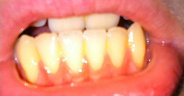 Ränder der Zähne gelblich weiß verfärbt?