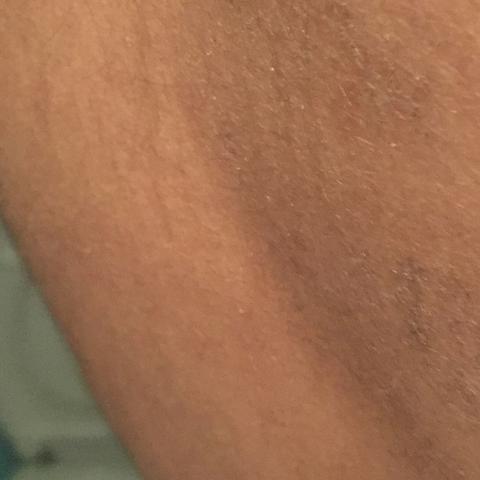 Hautfleck - (Gesundheit, Arzt, Haut)