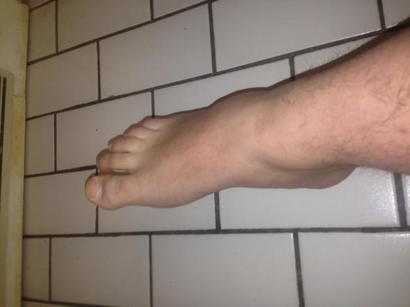 Rechter Fuß - (krank, Füße Krank)