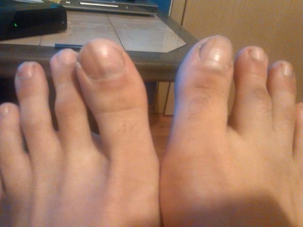 vergleich linker und rechter fus - (Medizin, Füße)