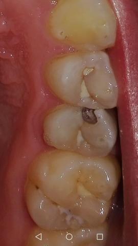 Loch Im Zahn Schwangerschaft