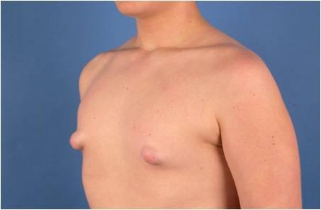 So sehen meine Brustwarzen aus - (Gesundheit, Körper, Männer)