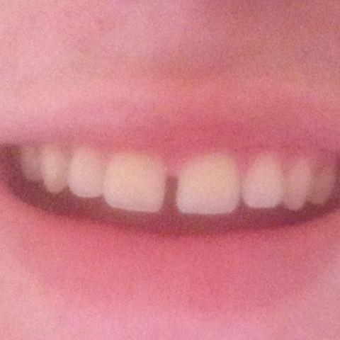 Riesen Zahnlücke wegbekommen?