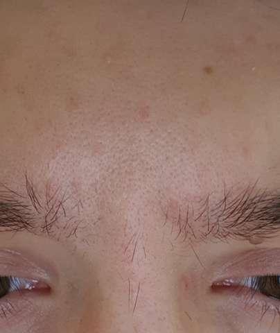 gesicht poren verfeinern
