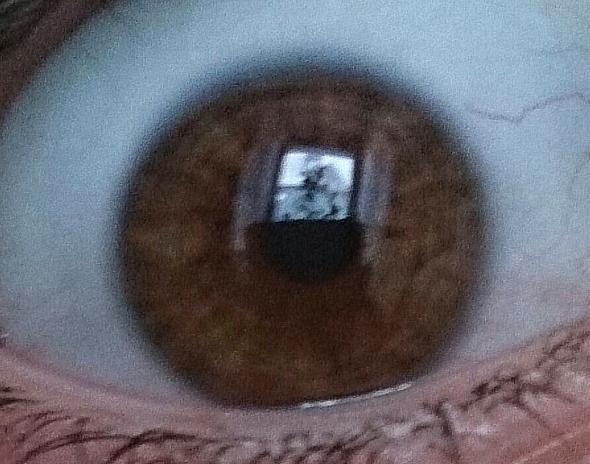 rechtes Auge  - (Augen, Ring, iris)