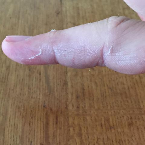 Ringfinger - (Finger, gebrochen)