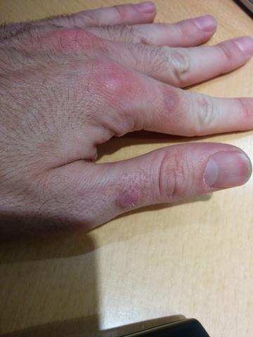 linke Hand - (Gesundheit, Haut, Hand)