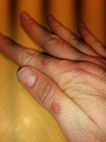 rechte Hand - (Gesundheit, Haut, Hand)