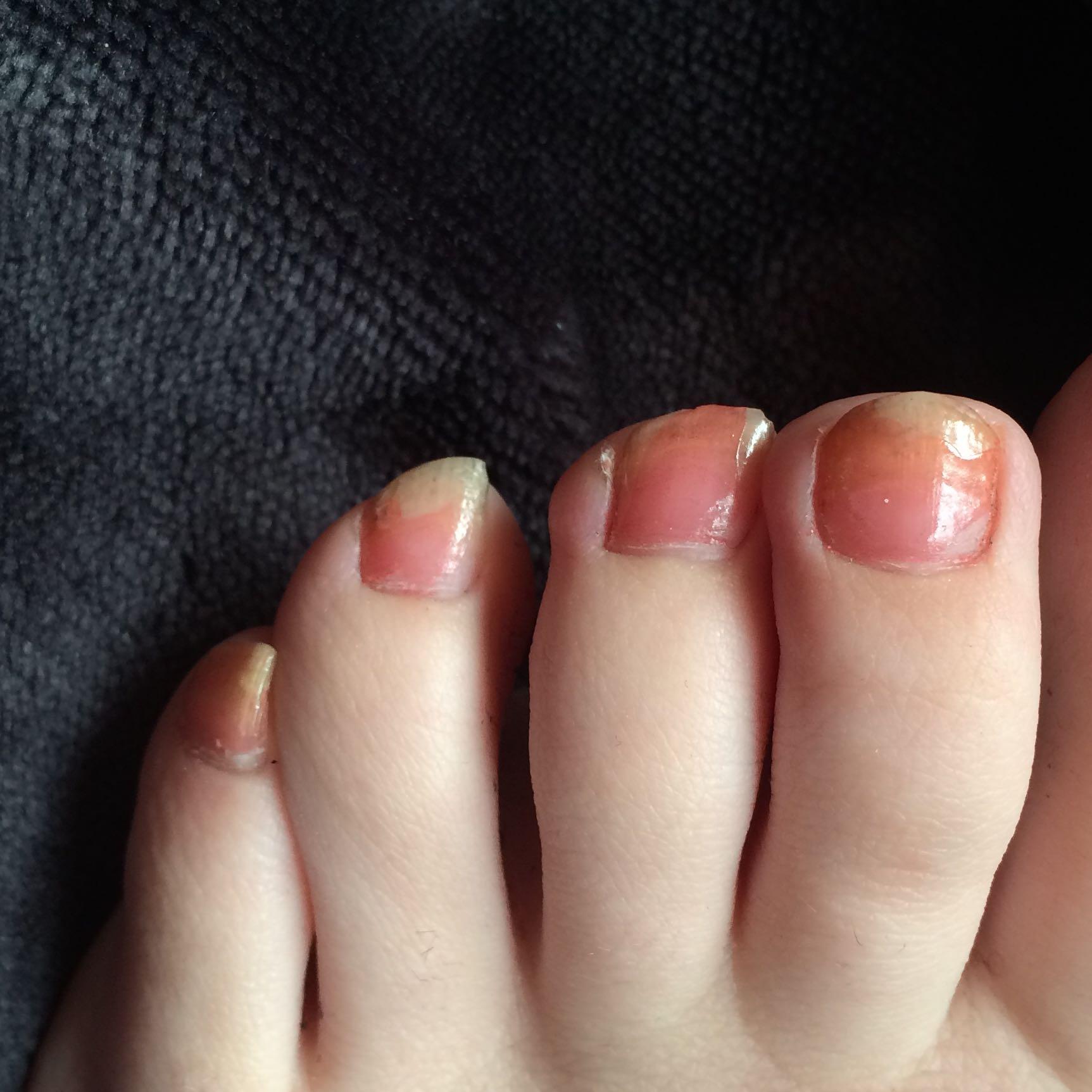 Rötliche Verfärbungen der Nägel, was ist die Ursache? (Füße, nagelpilz)