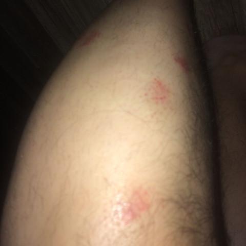 ebenso linkes Bein...so fing es beim rechten auch mal an - (Krankheit, Haut, Beine)