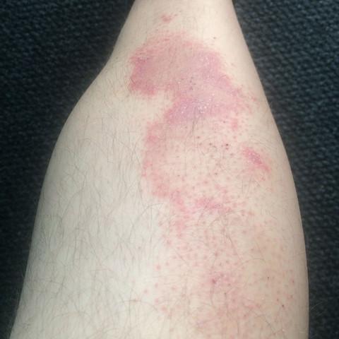 nochmal rechtes Bein - (Krankheit, Haut, Beine)