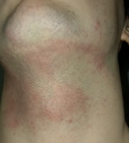 Rasur nach rote flecken Haut juckt