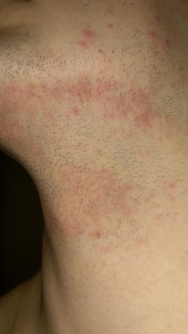 rötung nach rasur