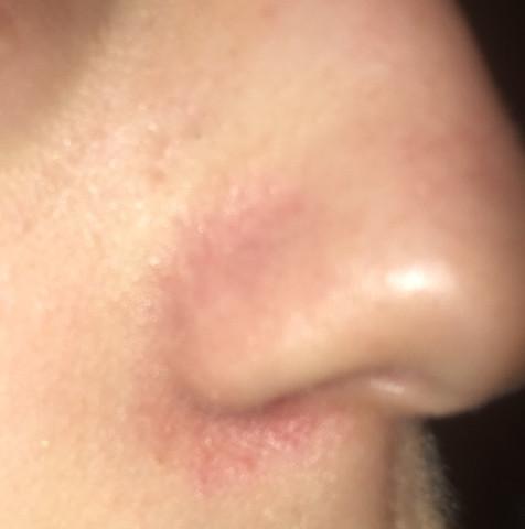 - (Haut, Nase, Hautprobleme)