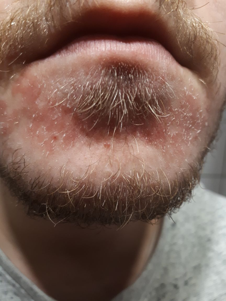 Rötungen und Schuppige Haut unter der Unterlippe? (Arzt