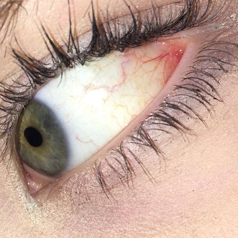 Rote Adern im Auge. Ist das normal? (Augen, rot)