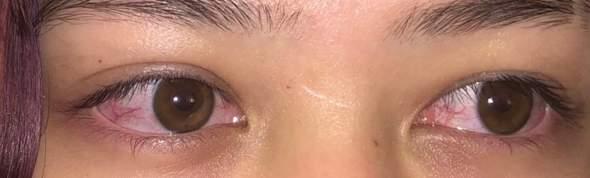 Rote augen wegen Wimpern-Serum?