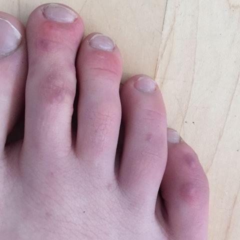 Rote Geschwollene Zehen Schmerzen