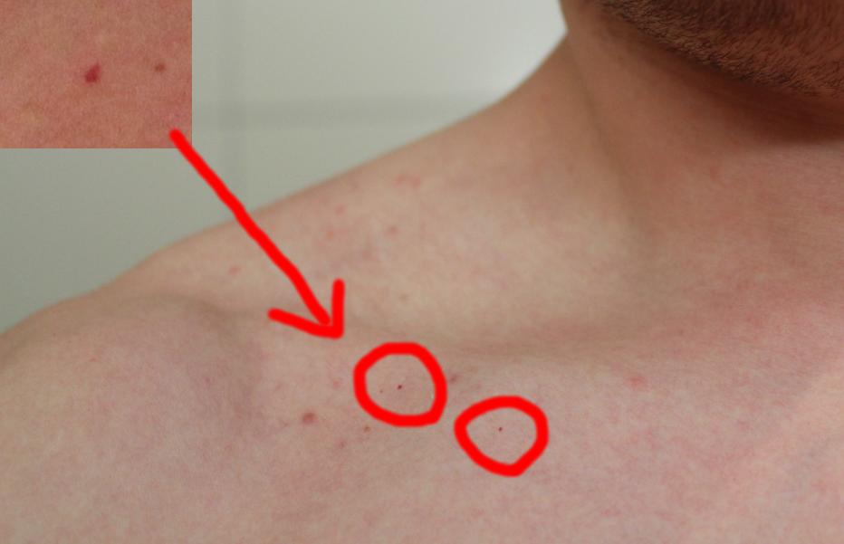 Rote (Blut-) Punkte auf der Haut - Ausschlag? (Gesundheit
