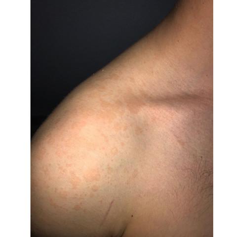 Rote Flecken am Rücken die jucken? (Gesundheit und Medizin