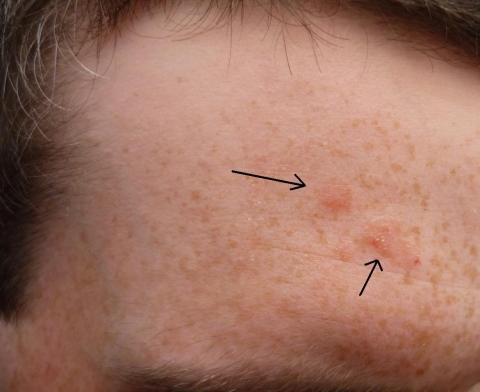 Stirn1 - (Flecken, Stirn)