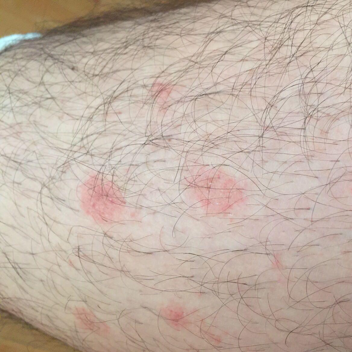 Die Behandlung der Thrombophlebitis subkutan Venen