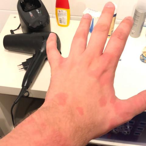Rote Flecken auf Haut bei Alkohol Konsum? (Gesundheit und