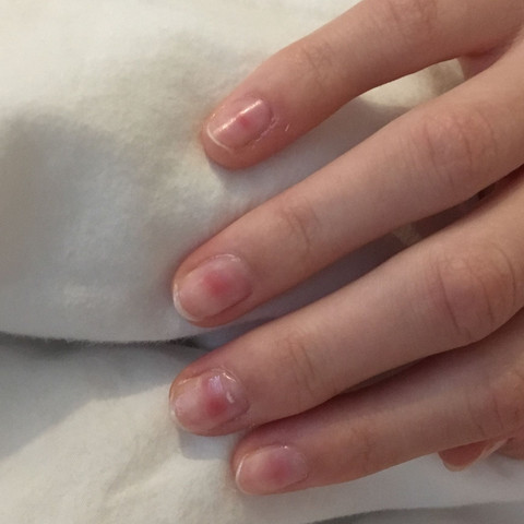 weiße flecken im nagel