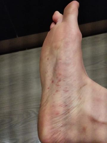 Fußsohle - (Haut, Ausschlag)