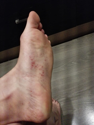 zweite Fußsohle - (Haut, Ausschlag)