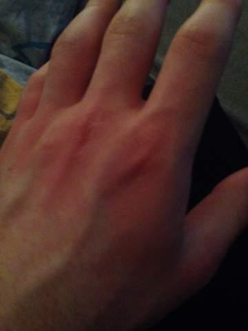 Handinnenflächen ursache rote Geschwollene Hände