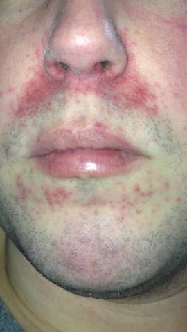 Rote Haut Warum Nur Rot Neurodermitis Hauterkrankung