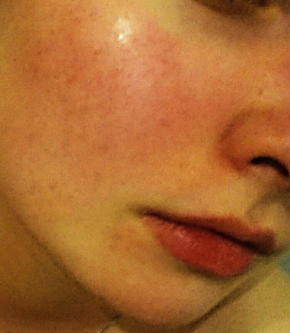 - (Haut, Ausschlag, Hautarzt)