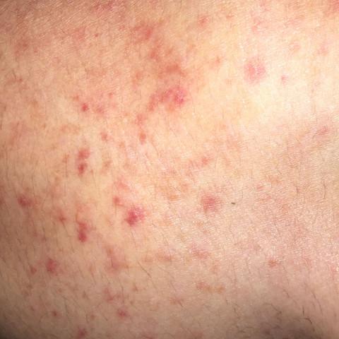 Rote punkte - (Gesundheit, Haut, rote-punkte)