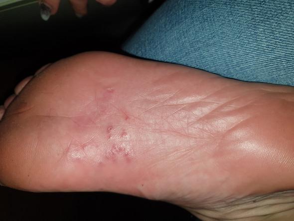 Juckende Fußsohlen