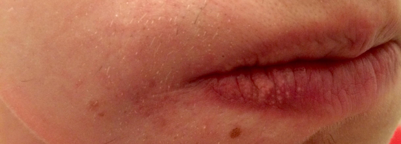 Rote Mundwinkel & Punkte auf den Lippen (Gesundheit, Pickel)