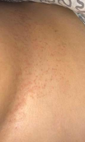 Hängen brüste Figurtypen Hängebrüste