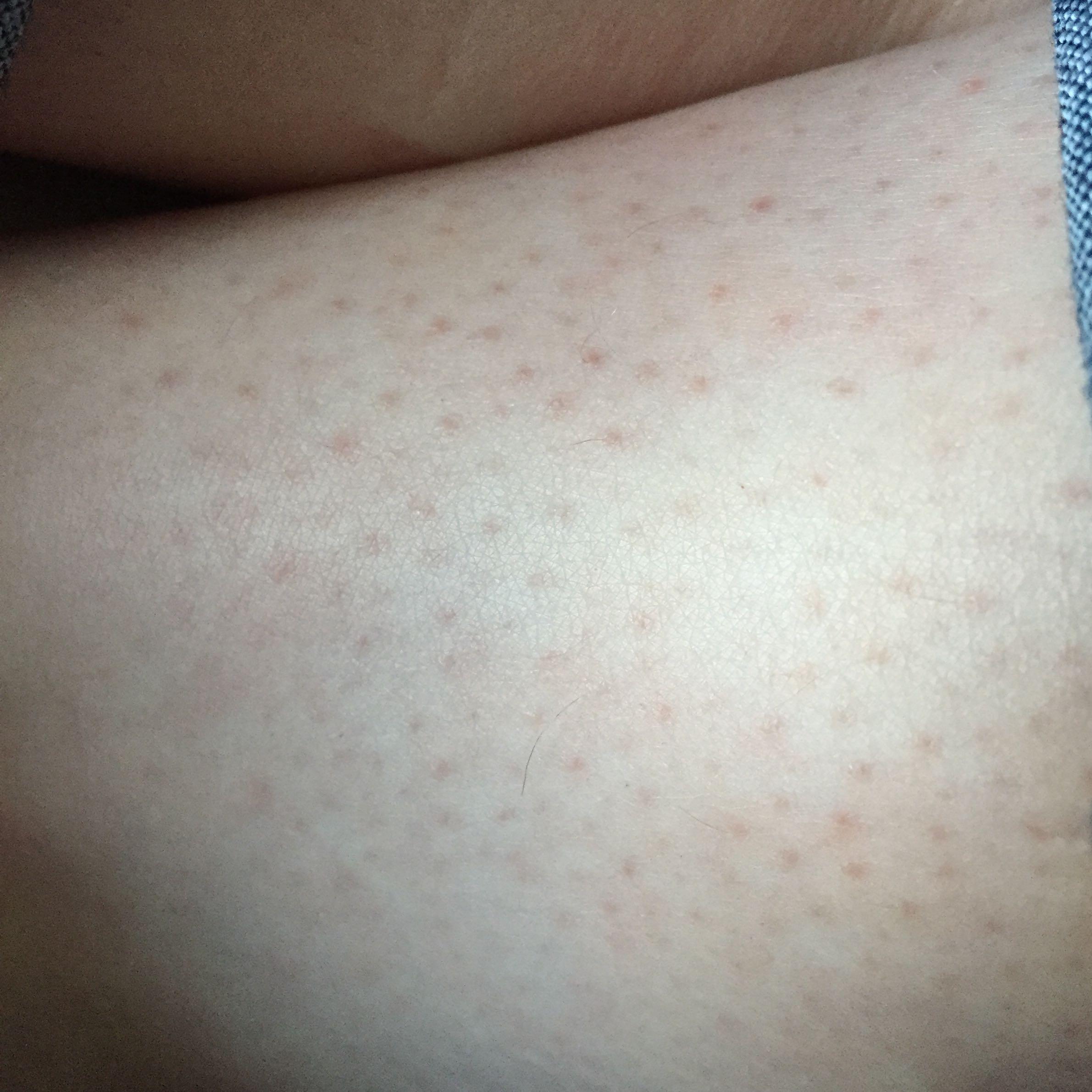 Rote Punkte am Bein - was hilft? (Haut, Beine, Hautrötung)