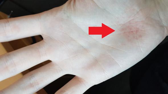 Handinnenfläche - (Gesundheit, Krankheit, krank)
