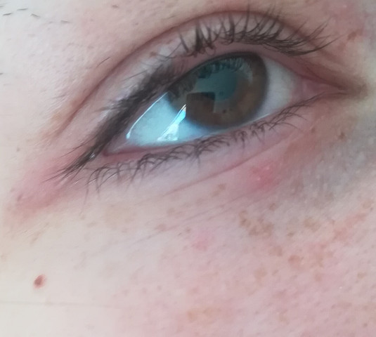 Rote Punkte Unter Den Augen