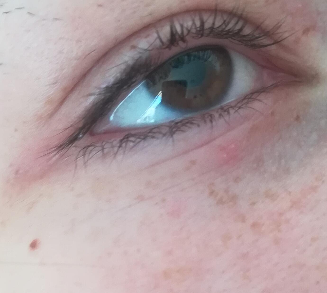 Rote Punkte Unterm Auge
