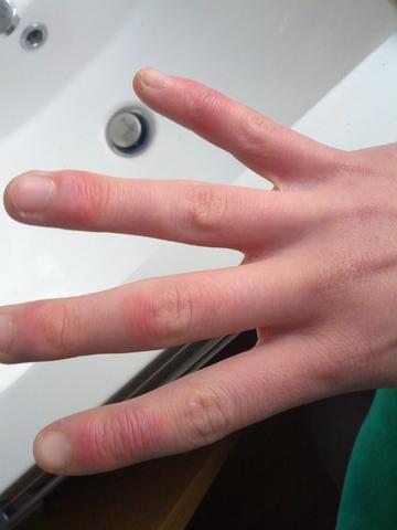 Geschwollene juckende finger