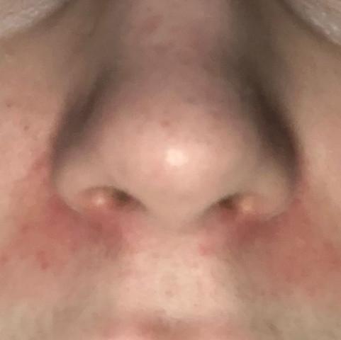 Rote Stelle An Der Nase Loswerden Schminken Gesundheit Und