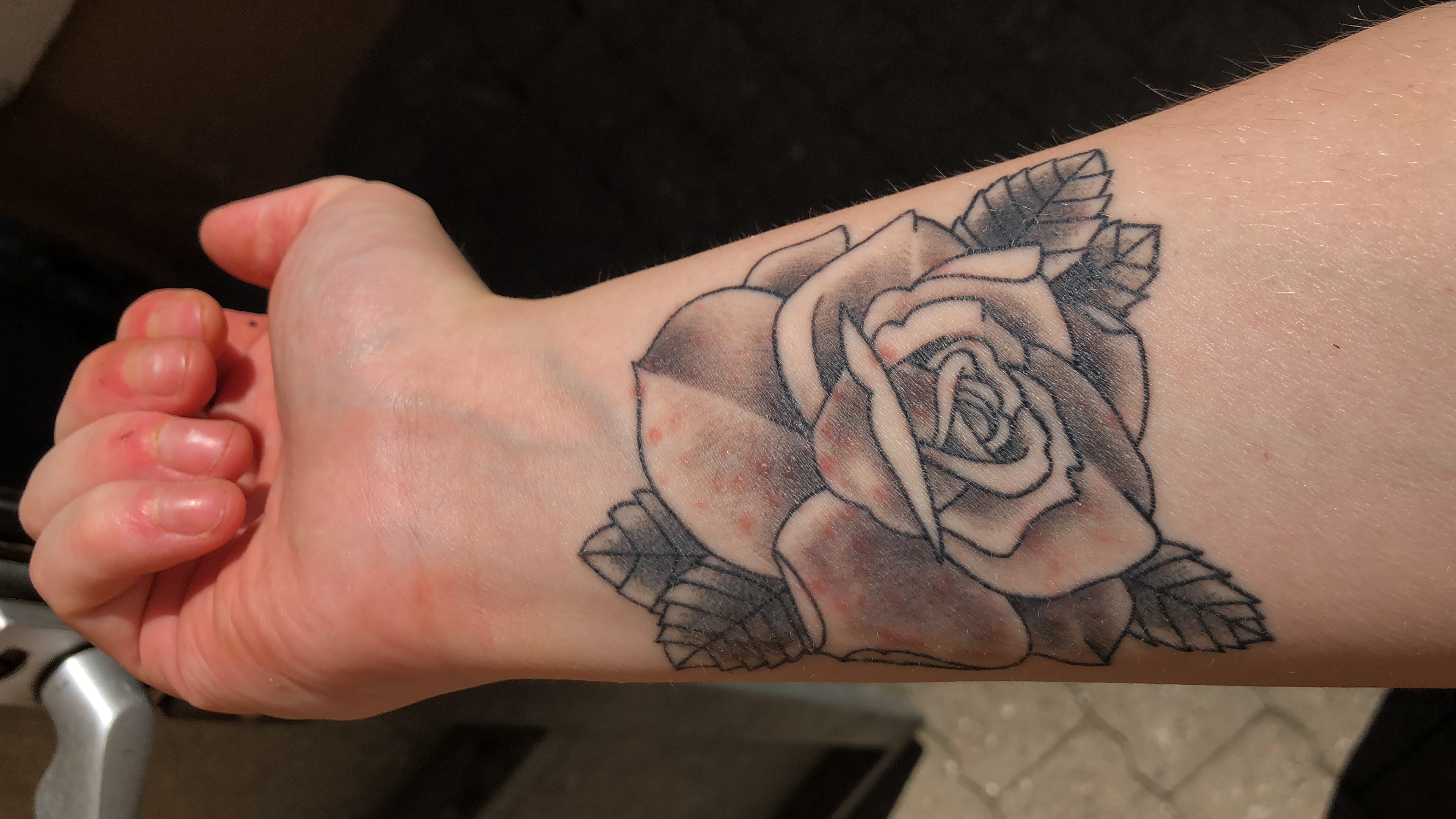 Tattoo trotz blutverdünner