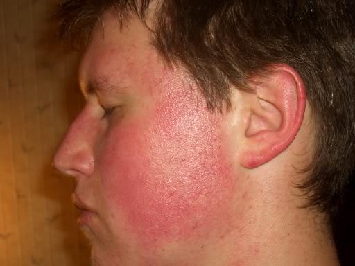 Rote Wangen, Mittel um dagegen anzukämpfen (Haut, Rötung)