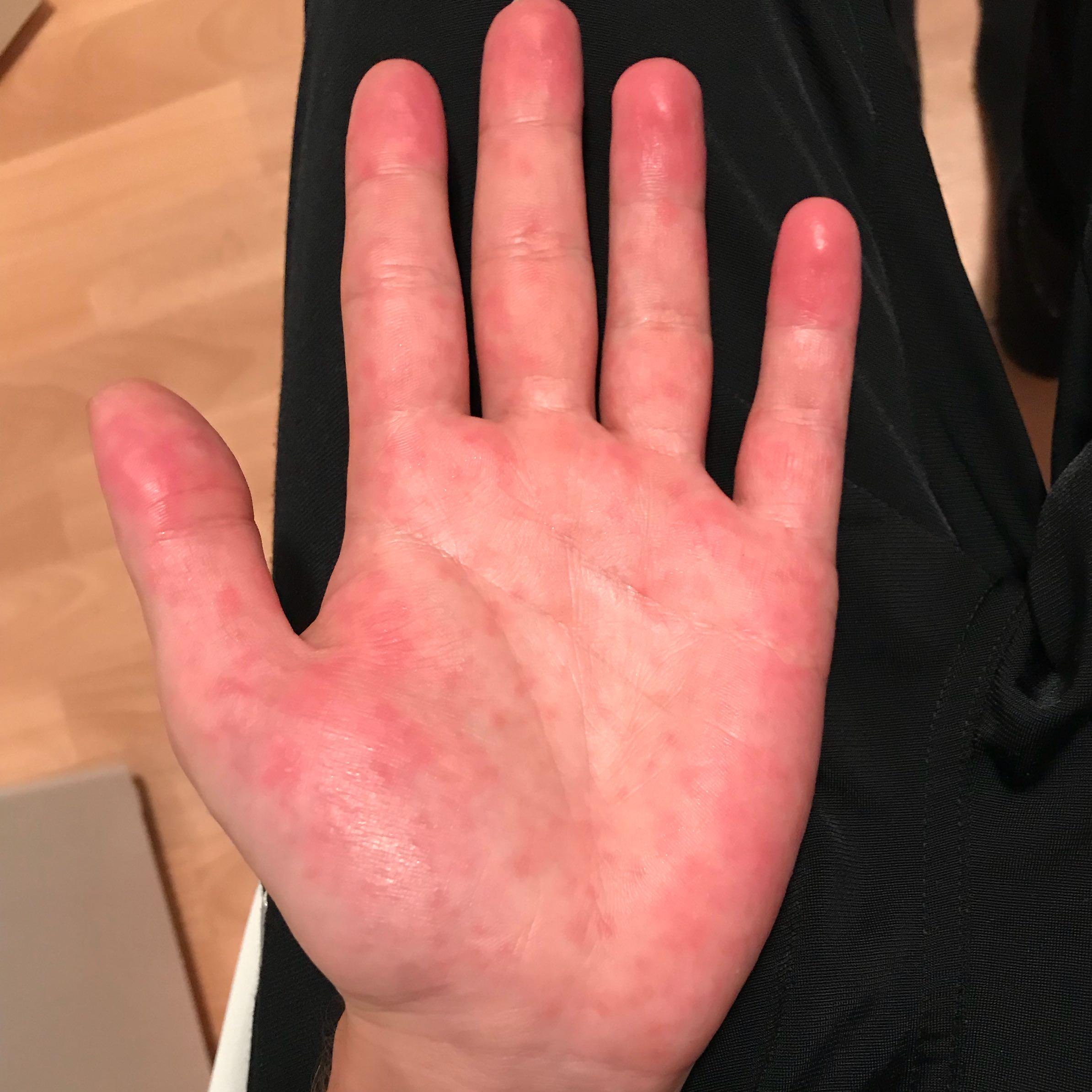Roten Flecken auf der inneren Handfläche? (Gesundheit und