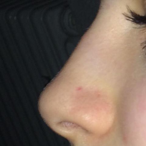 Roter Fleck Auf Der Nase