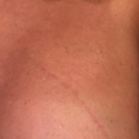 Roter Streifen/Kratzer auf der Brust? (Gesundheit, Wunde)