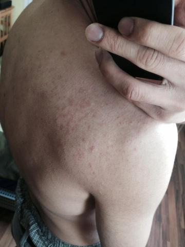 Rücken - (Haut, Allergie, Rücken)