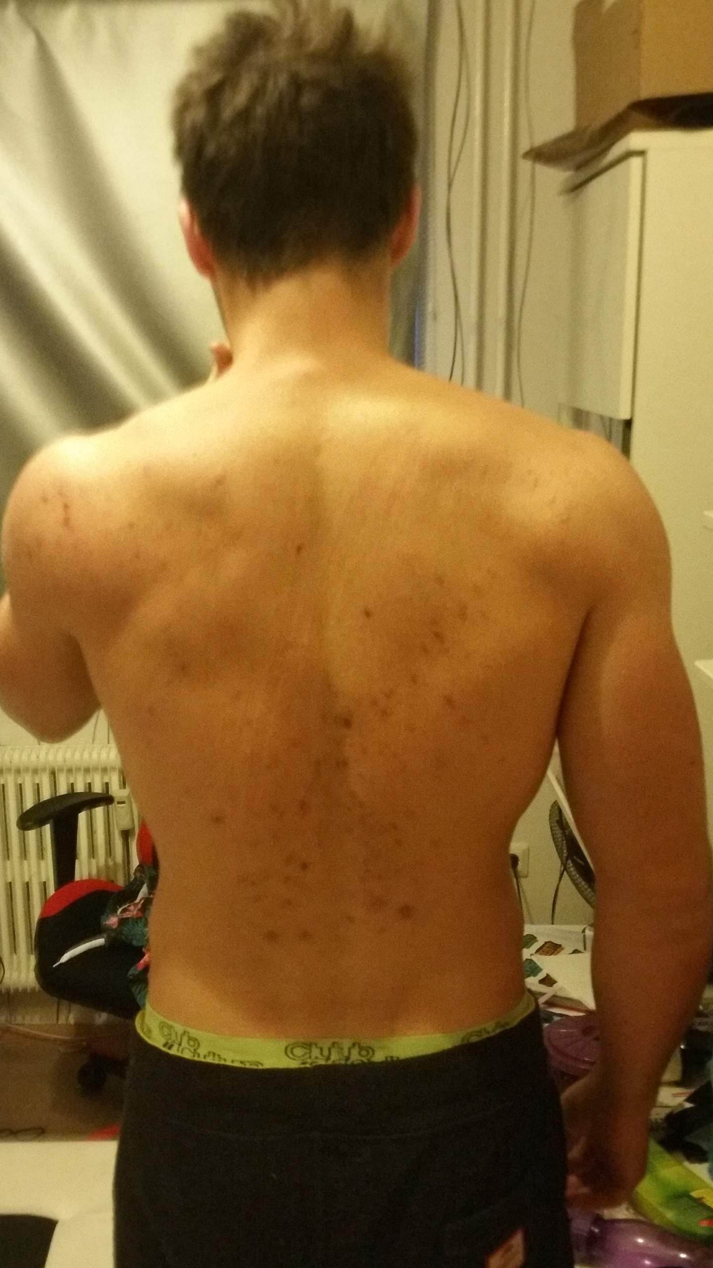Rücken akne narben